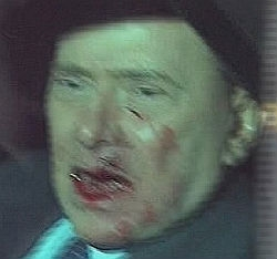 Photo of Silvio Berlusconi bleeding after being attacked at rally in Milan