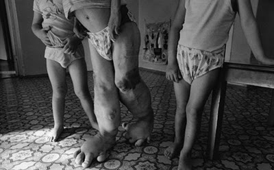 Chernobyl by Paul Fusco