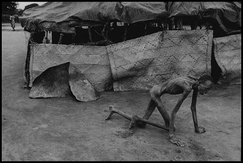 Photographie de James Nachtwey - Sudan, 1993 - Famine victim in a feeding center.