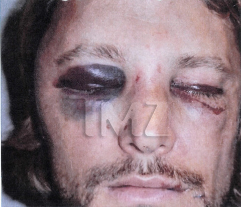 Gabriel Aubry's Gruesome Injuries