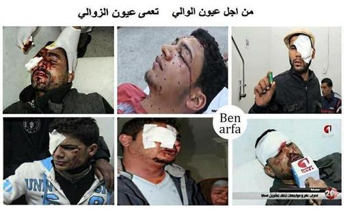 siliana Citizens blinded by police in Egypt