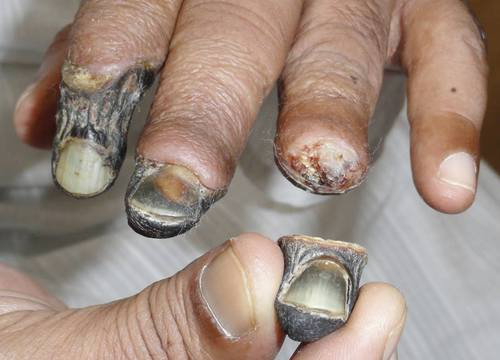 Just in case anyone is thinking about using the new street drug Krokodil, here is what it does to yo