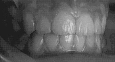 And they said braces are good for nothing! - Imgur