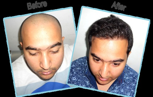 Number One Hair Transplant Clinic in India