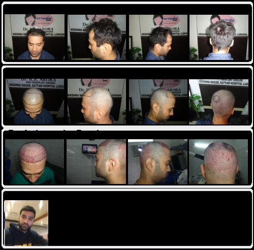 Prominent FUE Hair Transplant Clinic in India