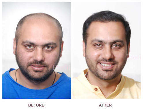 FUT Hair Transplant Surgery India at Low Cost