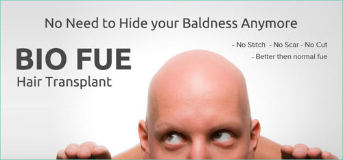 BIO FUE hair transplant cost in India