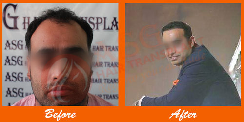 Best and low cost hair transplant surgery in Punjab