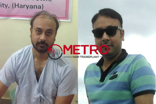 Low cost hair transplant center in India