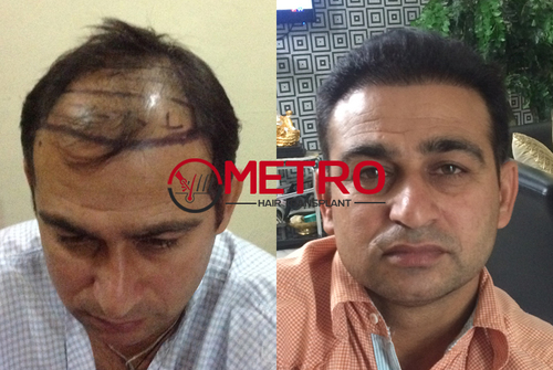 Affordable cost hair transplant center in India
