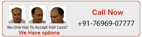 Low cost Hair transplant center in Punjab