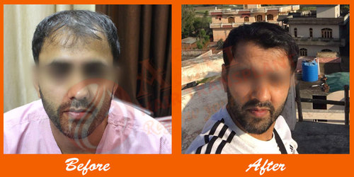 Permanent Baldness Treatment with Hair Transplant Surgery in India
