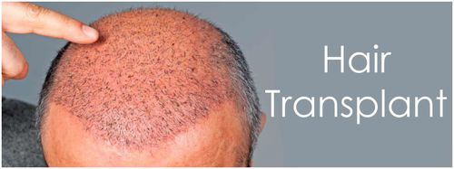 Cure hair loss with hair transplant surgery