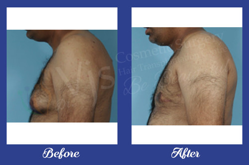Renowned Gynecomastia Surgery Clinic in India