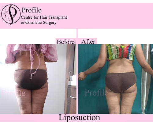 Liposuction Surgery in India at Reasonable Prices