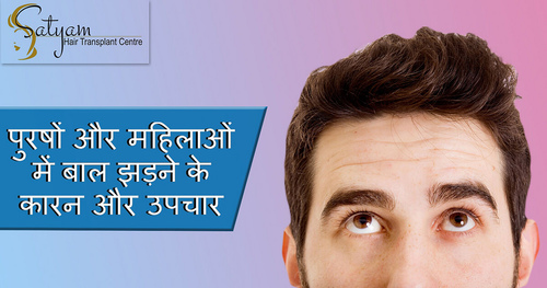 Affordable Hair Transplant in India