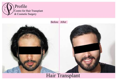 Stop Hair Loss with Hair Transplant in India