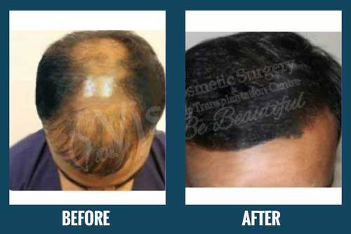 FUE Hair Transplant with Successful Results