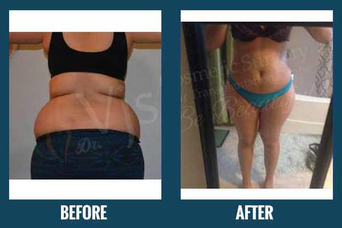 Best Liposuction Surgery Center in Malaysia