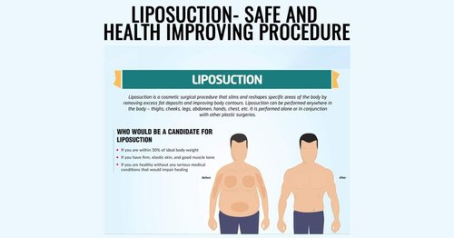 Number One Liposuction Surgery Clinic in India