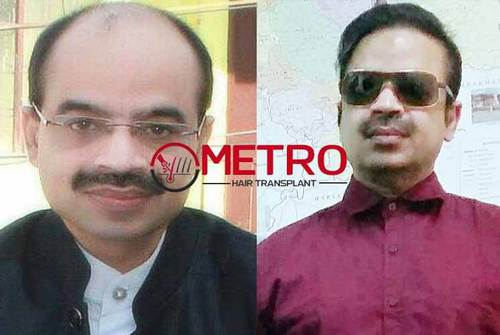 Hair Transplant with Successful Results