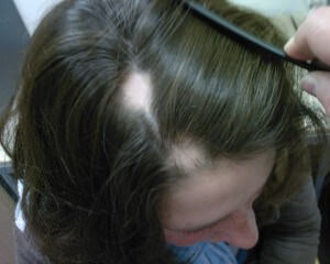 Affordable Prices for  Alopecia Areata Hair Treatment in India.