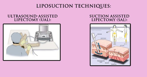 Add you Clinic of Liposuction into Clinic by Choice