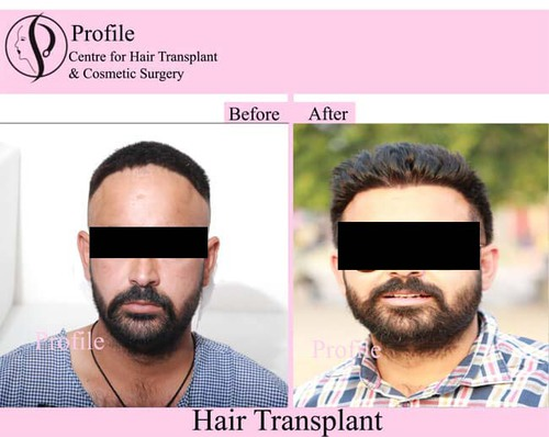 Benefits of Hair Transplant Surgery in India