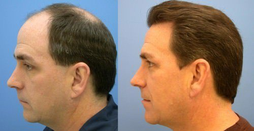 Best Hair Transplant Center in India fro PRP Technique.