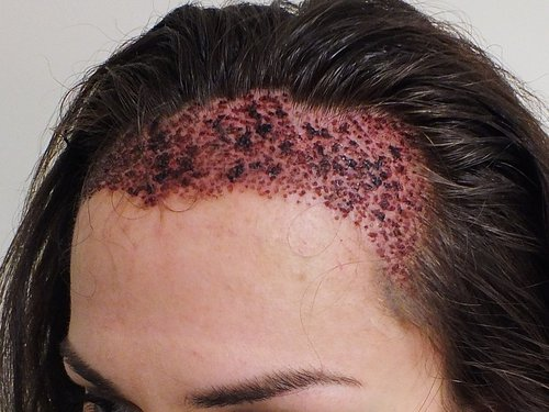 Hair Transplant center, cost and Procedure in Chandigarh.