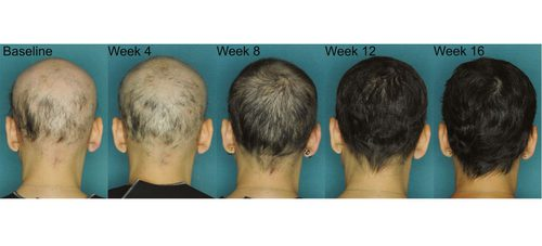 Affordable Priced Alopecia Areata Treatment in India