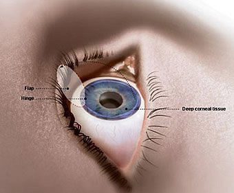 Reputed Center for Lasik eye Treatment in Punjab.