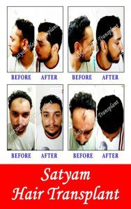 Hair Transplant Surgery Cost in India