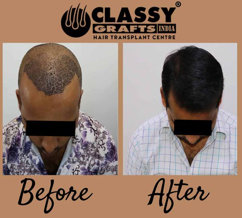 Want Quality Hair Transplant Treatment in Bangalore then visit Classy Grafts India