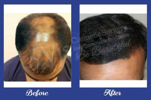 Reliable and Reasonable Alopecia Areata Treatment in Visakhapatnam