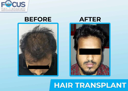 No.1 Clinic for Hair transplant in Punjab