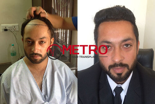 Best and Affordable FUE Hair Transplant Treatment in India