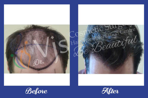 Best Hair Transplant Treatment in India