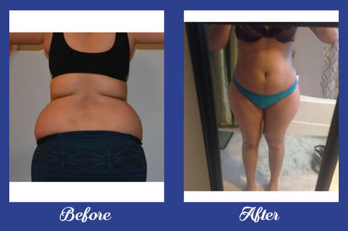 Excellent Result of Liposuction Surgery - VJ Clinics, Visakhapatnam