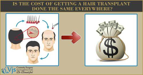 Deep Details About Hair Transplant Cost in India