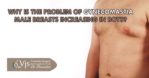 Gynecomastia Problem, Causes and Treatment in India
