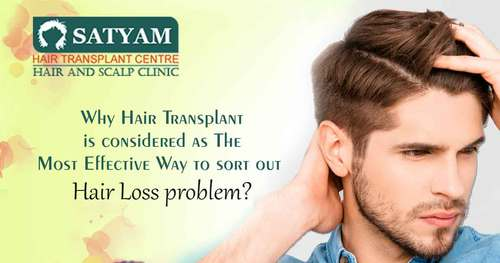 Best FUE Hair Transplant Surgery in India