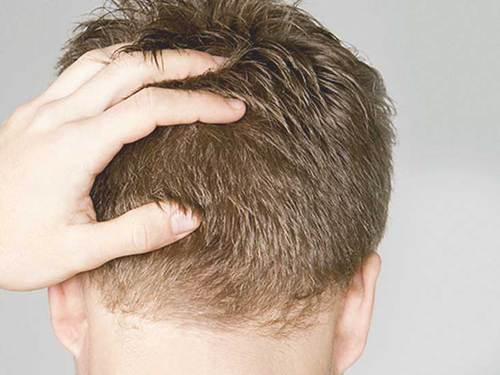 How to boost up the hair growth?