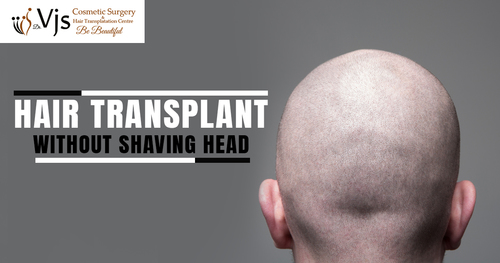 Hair transplant without shaving head