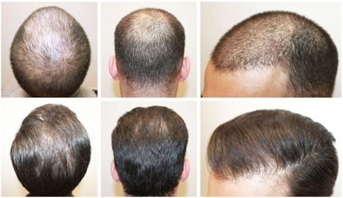 How it is beneficial to undergo hair transplant surgery for treating hair loss?