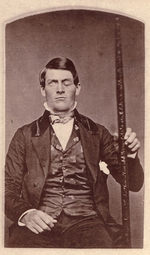 Photo de Phineas Gage tenant la barre à mine responsable de son accident.